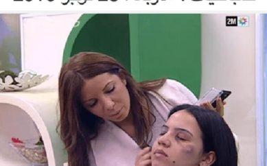 Il tutorial per coprire i lividi va in onda sulla tv marocchina ed è subito caos